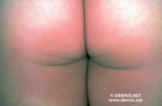 localisation: buttocks diagnosis: Pellagroid Drug Eruption