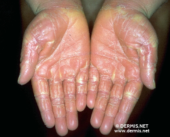 localisation: hands palms diagnosis: Pellagroid Drug Eruption