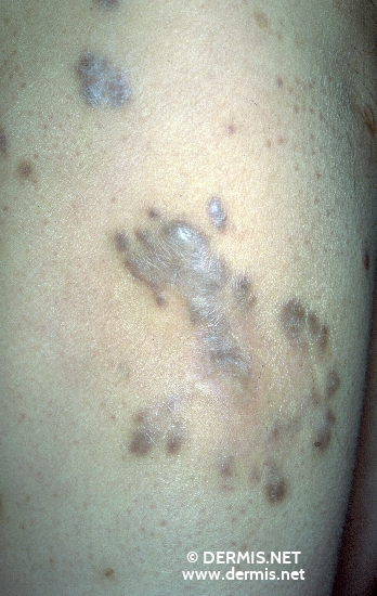 diagnosis: Hypertrophic Scar