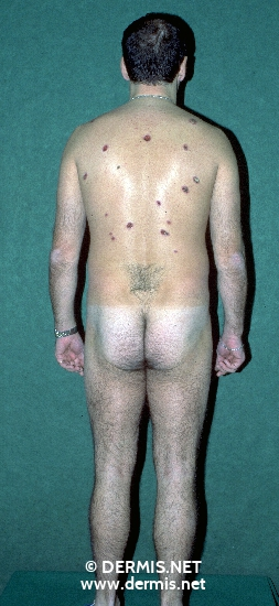 localisation: back diagnosis: Factitial Dermatitis
