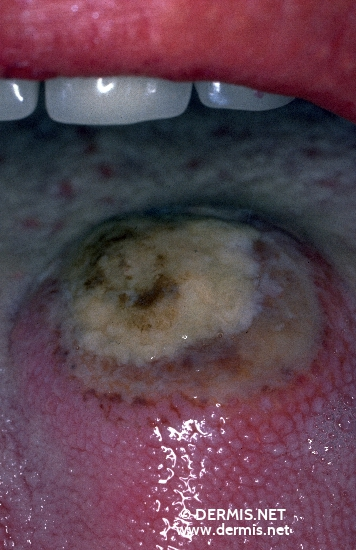localisation: tongue diagnosis: Eosinophilic Ulcer of the Tongue