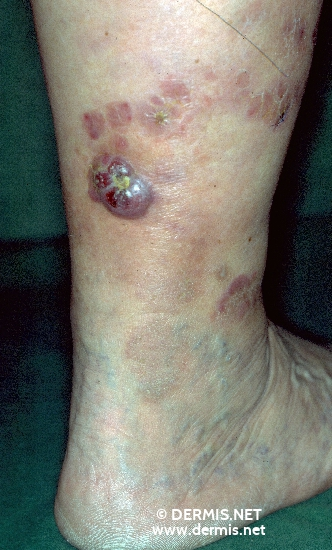 localisation: lower leg diagnosis: Immunoblastic Lymphoma