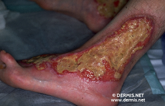 localisation: ankle joint diagnosis: Pyoderma Gangrenosum