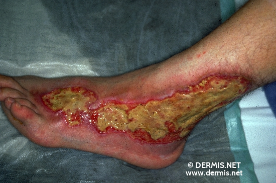 localisation: ankle joint back of the feet diagnosis: Pyoderma Gangrenosum