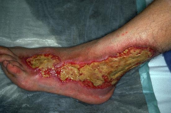 Pyoderma Gangrenosum - Pictures, Symptoms, Causes ...