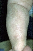 localisation: lower leg, diagnosis: Incontinentia Pigmenti
