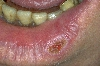 localisation: lower lip, diagnosis: Carcinoma of Lip