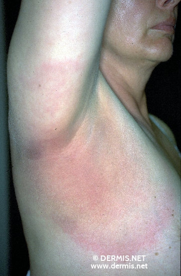 localisation: axilla diagnosis: Erythema Chronicum Migrans