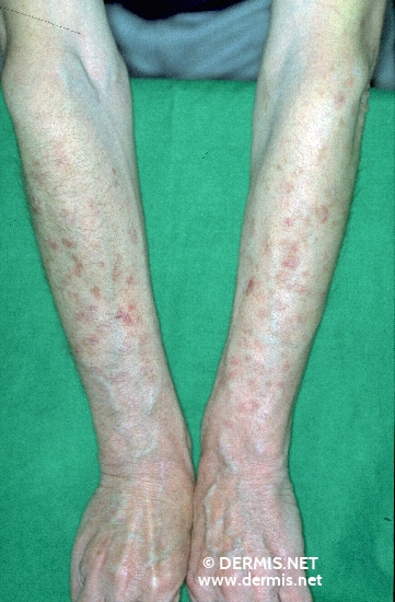 diagnosis: Disseminated Superficial Actinic Porokeratosis
