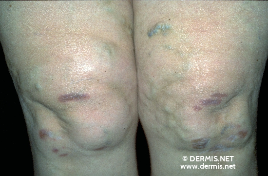 localisation: knee diagnosis: Sarcoidosis of the Skin, Plaque Form