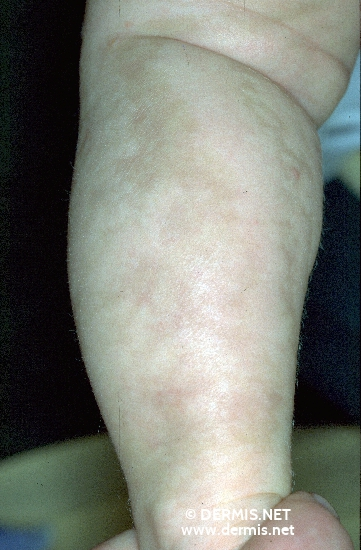 localisation: lower leg diagnosis: Incontinentia Pigmenti