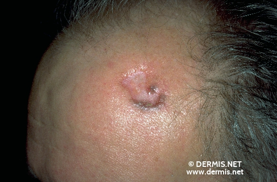 localisation: forehead diagnosis: Basal Cell Carcinoma, Morpheiform