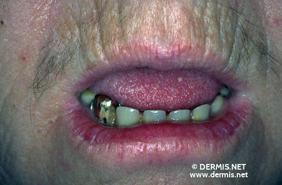 localisation: lips (skin) lower lip diagnosis: Actinic Cheilitis