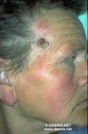 localisation: temples diagnosis: Basal Cell Carcinoma, Ulcerating