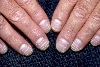 localisation: nail plate of the finger, diagnosis: Leukonychia Striata