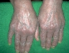 localisation: back of the hands, diagnosis: Psoriatic Erythroderma