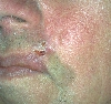 localisation: cheek, diagnosis: Basal Cell Carcinoma, Morpheiform
