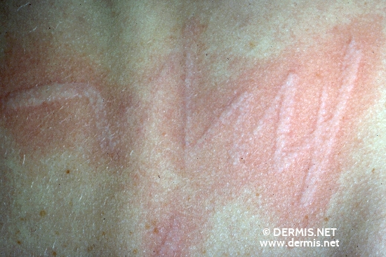 localisation: back diagnosis: Urticaria Factitia