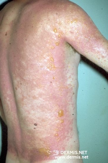 localisation: back diagnosis: Phytophotodermatitis
