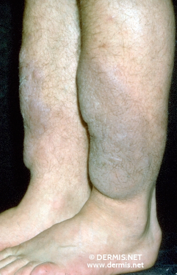 localisation: tibial diagnosis: Myxoedema, Pretibial