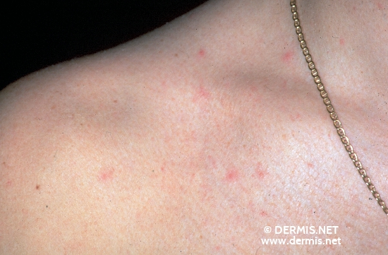 Acute HIV Infection Rash