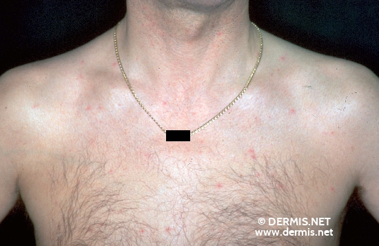 localisation: upper chest diagnosis: HIV-Infection