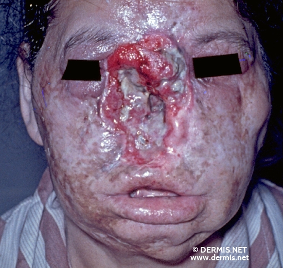 localisation: mouth (skin) cheek nose diagnosis: Lupus Vulgaris Lupus Carcinoma