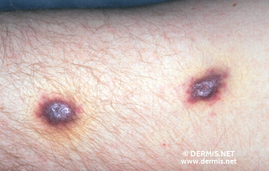 diagnosis: AIDS-Related Complex Kaposi's Sarcoma