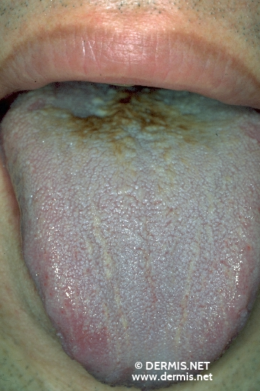 localisation: tongue diagnosis: Hairy Tongue