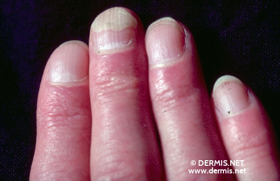 localisation: subungual (fingernail) diagnosis: Onycholysis Semilunaris