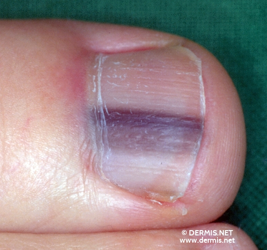 localisation: toenail diagnosis: Melanonychia Striata