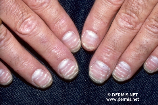 localisation: nail plate of the finger diagnosis: Leukonychia Striata