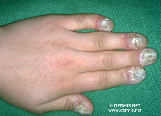 localisation: periungual (fingernail) toenail diagnosis: Acrodermatitis Continua Suppurativa Hallopeau