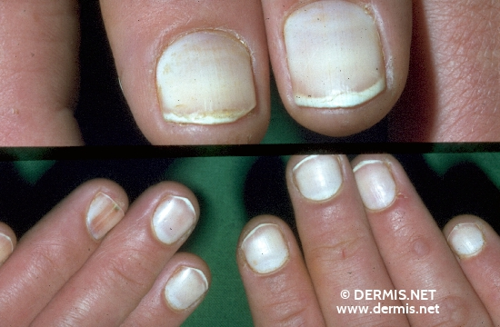 localisation: fingernail diagnosis: Leukonychia Totalis