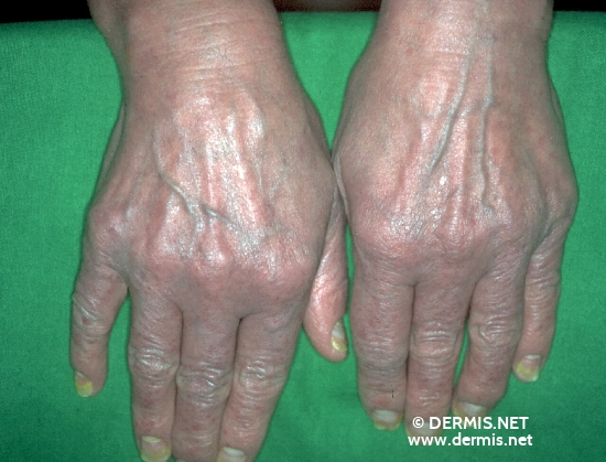 localisation: back of the hands diagnosis: Psoriatic Erythroderma