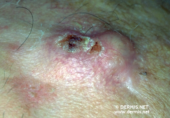 localisation: forehead diagnosis: Squamous Cell Carcinoma