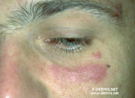 localisation: around the eyes diagnosis: Discoid Lupus Erythematosus (DLE)