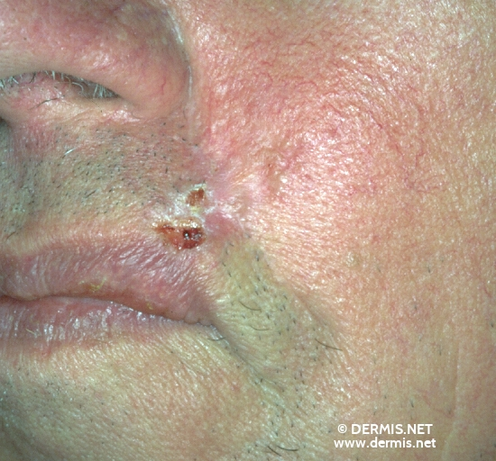 localisation: cheek diagnosis: Basal Cell Carcinoma, Morpheiform