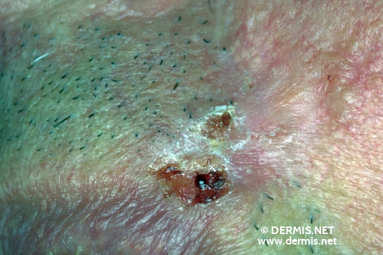 localisation: upper lip diagnosis: Basal Cell Carcinoma, Morpheiform