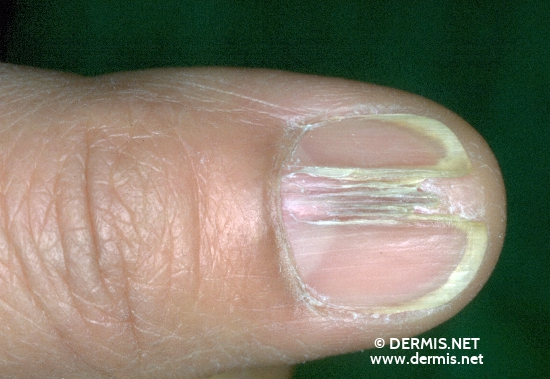 localisation: fingernail diagnosis: Onychodystrophia Mediana Canaliformis