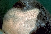 localisation: scalp, diagnosis: Trichotillomania