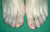 localisation: toe, toenail, diagnosis: Acrodermatitis Continua Suppurativa Hallopeau
