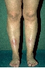 localisation: Unterschenkel, tibial, Diagnose: Erythema nodosum