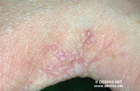 Diagnosis and Treatment of Lichen Planus - American Family ...