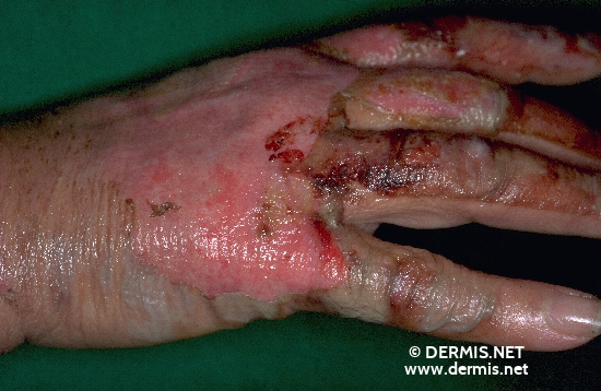 localisation: back of the hands diagnosis: Burn / Scald, Second-Degree