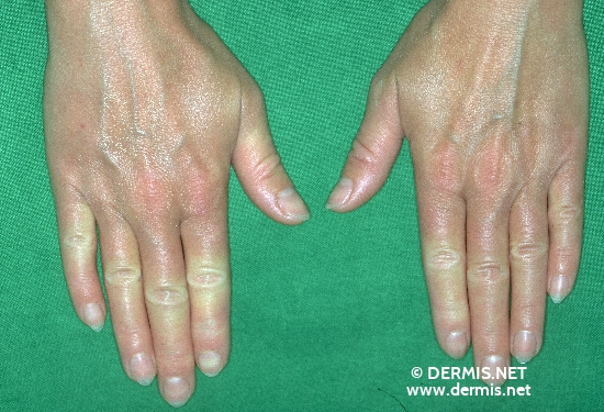 localisation: finger digital proximal interphalangeal joint diagnosis: Raynaud's Syndrome Progressive Systemic Scleroderma
