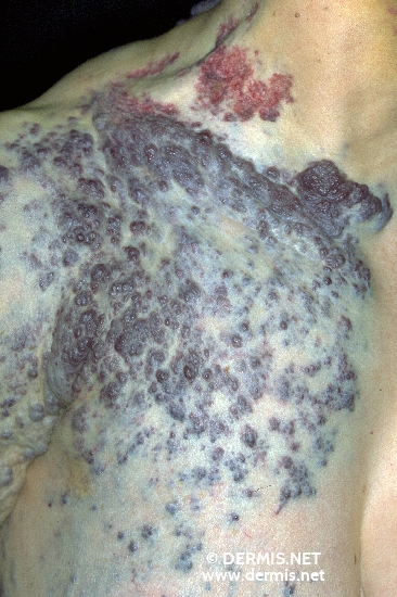 localisation: shoulder region diagnosis: Hemangioma Racemosum