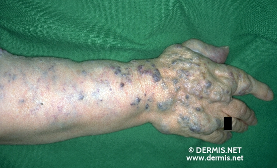localisation: lower arms diagnosis: Hemangioma Racemosum
