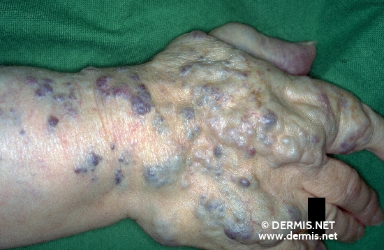 localisation: back of the hands diagnosis: Hemangioma Racemosum