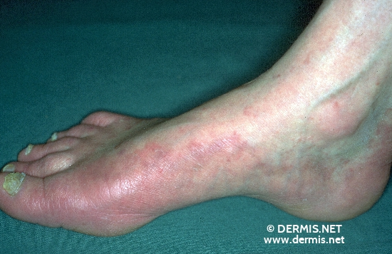 localisation: back of the feet sole toenail diagnosis: Onychomycosis Tinea Pedis